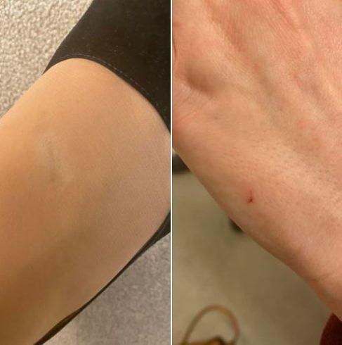 Захарова опубликовала фото последствий нападения журналисток из Грузии 3