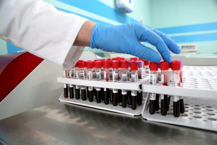 Известна самая устойчивая к коронавирусу группа крови ➤ Главное.net