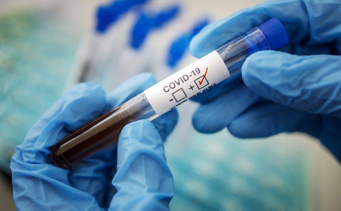 Запущен выпуск экспресс-тестов на антитела к COVID-19 ➤ Главное.net