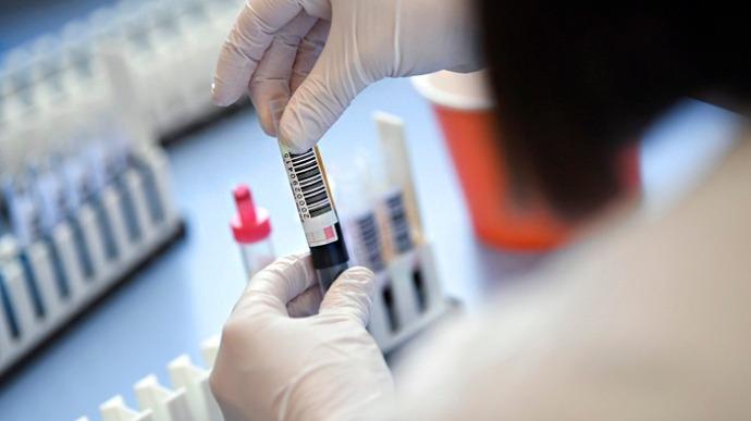 Связь между группой крови и тяжестью коронавируса подтверждена ➤ Главное.net