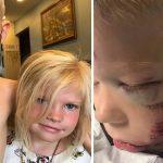 6-летний мальчик чуть не умер, спасая сестру от собаки ➤ Главное.net