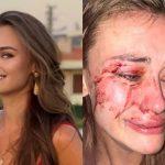 Украинскую топ-модель жестоко избили охранники пляжа в Турции ➤ Главное.net