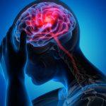 Стало известно о неожиданном предвестнике опухоли мозга ➤ Главное.net