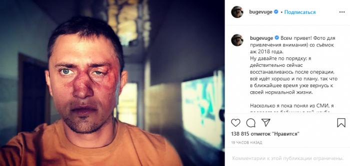 """""""Подрался за бабушку в гей-клубе"""": Прилучный лично прокомментировал свое избиение 3"""