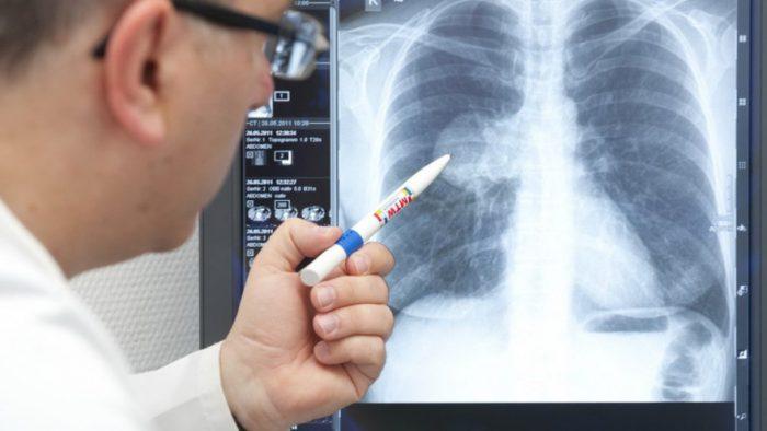 Почему не «рассасывается» пневмония ➤ Главное.net